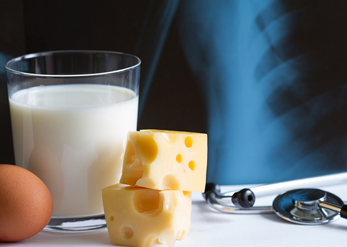 4 signs that you might be at risk for osteoporosis