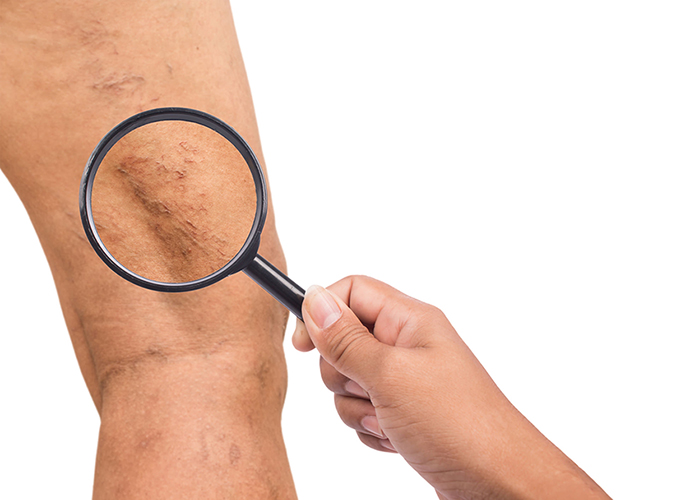 Phlebitis or varicose veins? What's the difference?