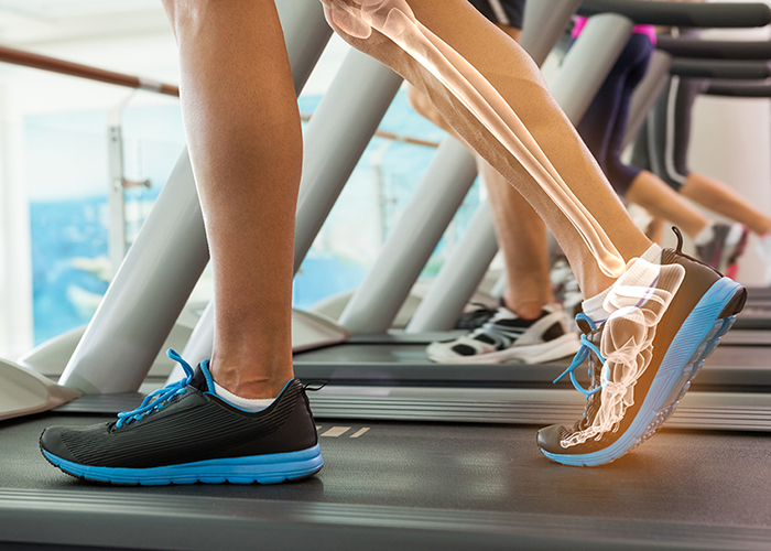 The importance of healthy bone density